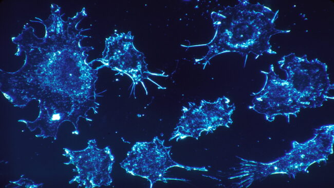 Cancer Treatment Technologies