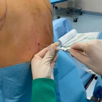 dispositivo per anestesia spinale