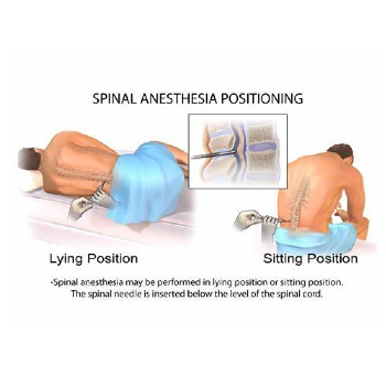 spinal anesthesia may be performed in lying or sitting position. The spinal needle is inserted below the level of the spinal cord.